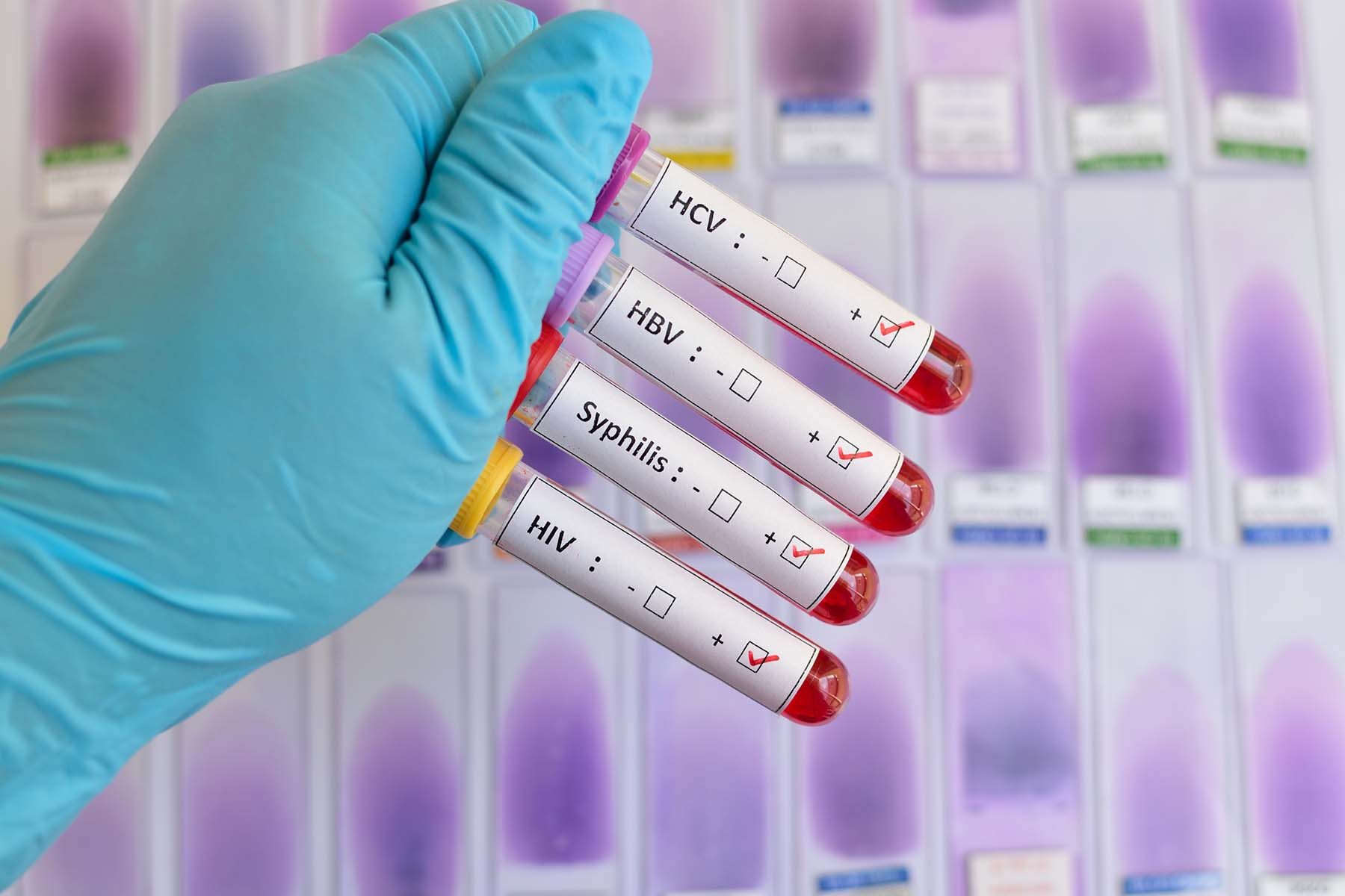 A doctor's gloved hand holding test tubes containing blood samples for sexually transmitted infections tests.